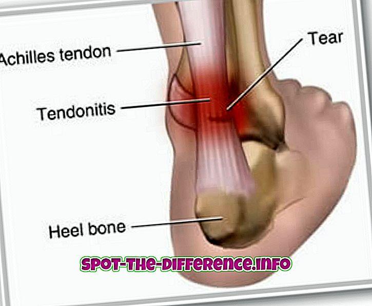 Tendiniidi, tendinosiidi ja tendinopaatia erinevus