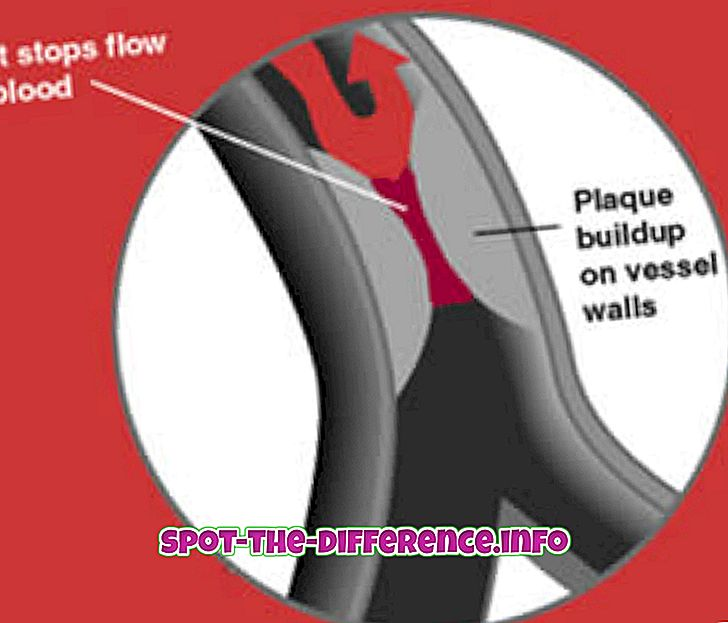 razlika između: Razlika između srčanog udara i napada panike