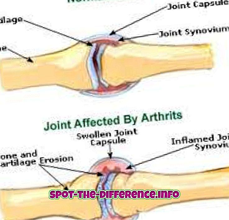 vahe: Erinevus artriidi ja podagra vahel