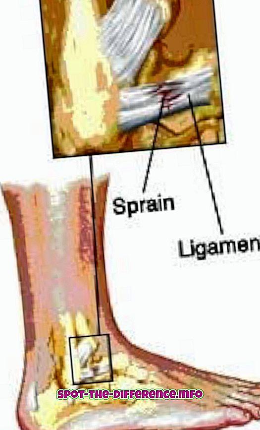 ความแตกต่างระหว่าง: ความแตกต่างระหว่าง Sprain และ Strain