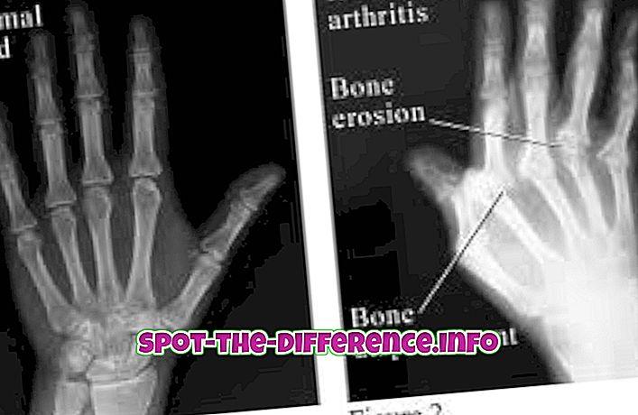 Unterschied zwischen: Unterschied zwischen Arthritis und rheumatoider Arthritis