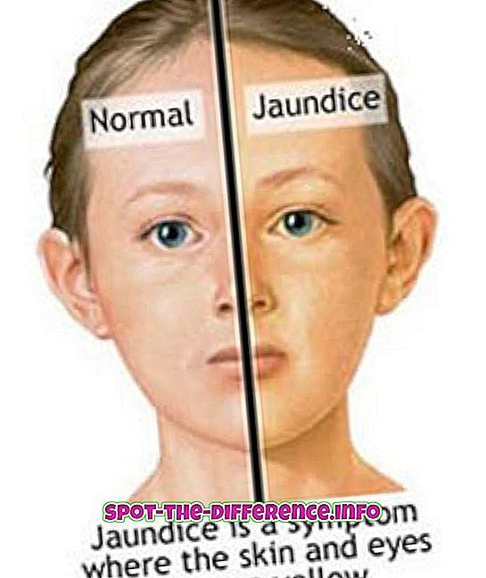 sự khác biệt giữa: Sự khác biệt giữa vàng da và viêm gan