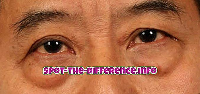 Verschil tussen oogwallen en oogzakken