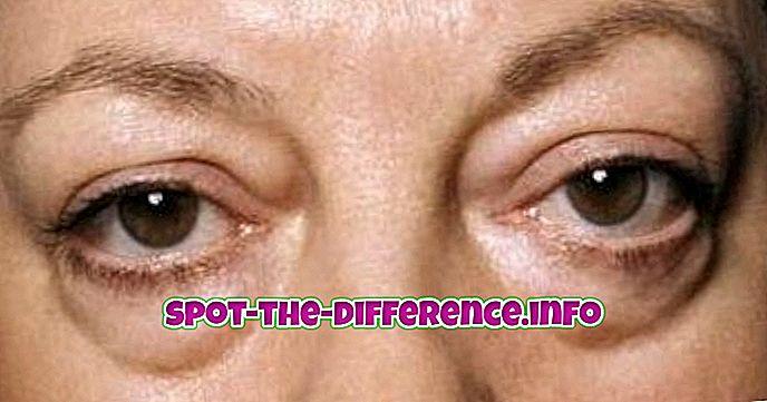 rozdiel medzi: Rozdiel medzi okuliarmi a tmavými kruhmi