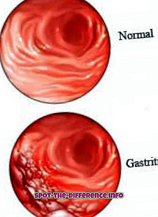 Różnica między zapaleniem żołądka a wrzodami