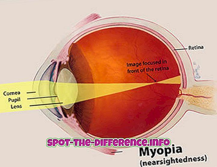 Unterschied zwischen Myopie und Hyperopie