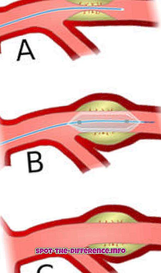 Forskjell mellom ballongangioplastikk og angioplastikk
