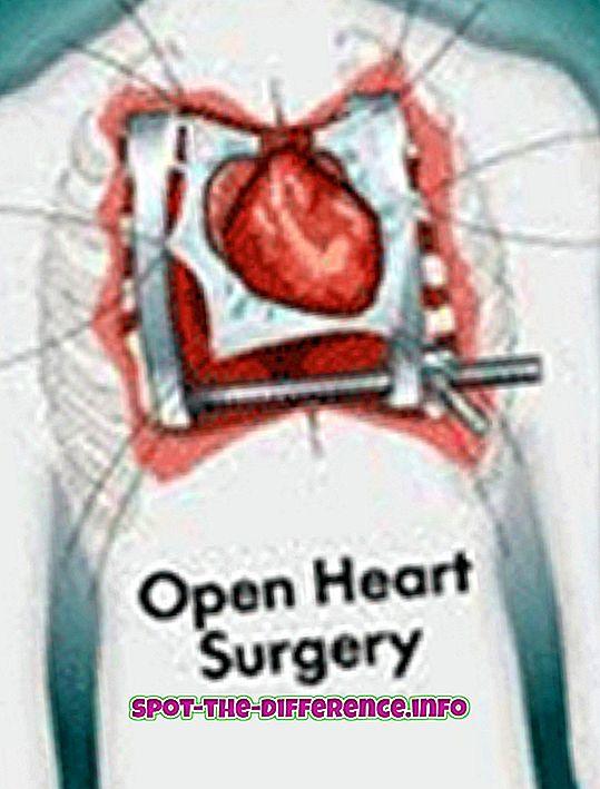 Forskjell mellom åpen hjerteoperasjon og angioplastikk