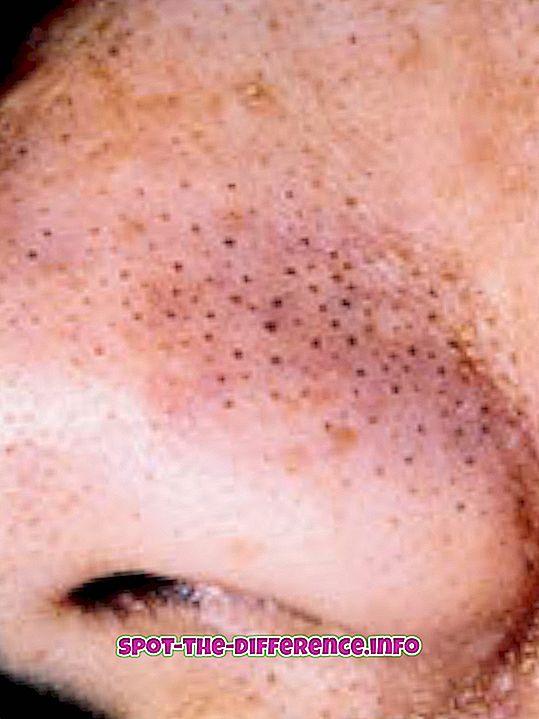 comparații populare: Diferența dintre Blackhead și Pimple