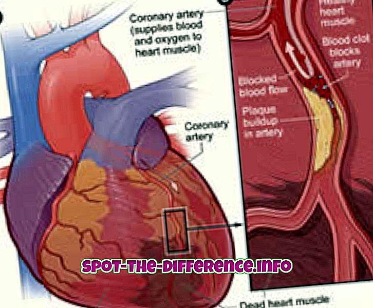 Unterschied zwischen Herzinfarkt und Schlaganfall