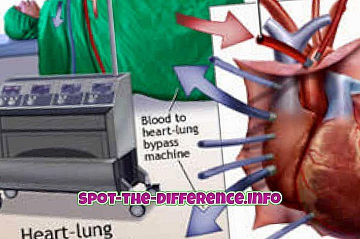 популарна поређења: Разлика између операције отвореног срца и затворене хирургије срца