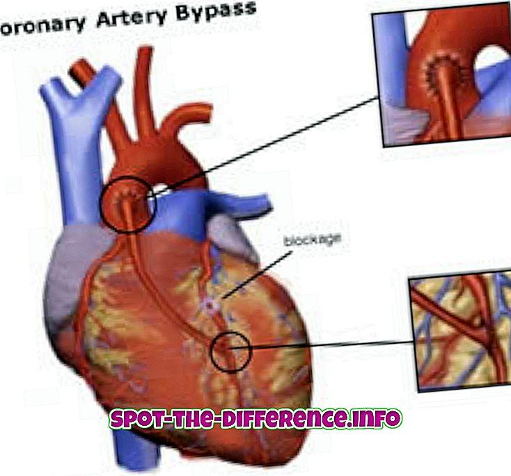 tautas salīdzinājumi: Starpība starp apvedceļa ķirurģiju un angioplastiku
